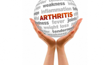 SSDI Arthritis Claims: A Closer Look