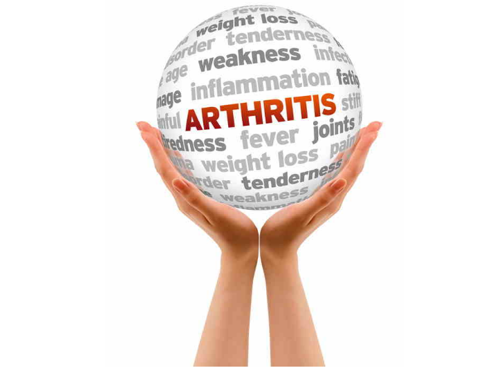 SSDI Arthritis Claims: A Closer Look